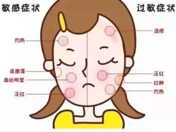 福州治疗皮肤过敏哪家好?